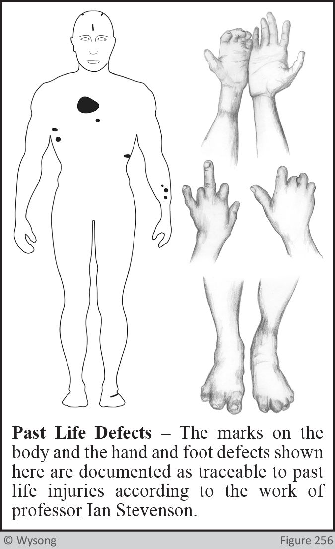 Past Life Defects