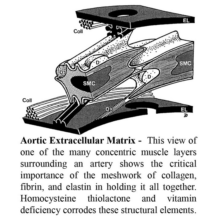 Aortic Extracellular Matrix