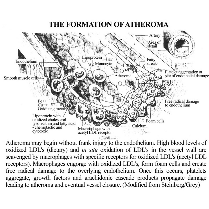 Formation of Atheroma