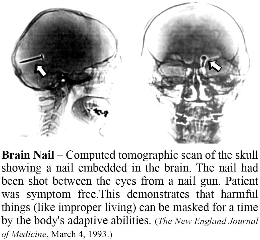 Brain Nail